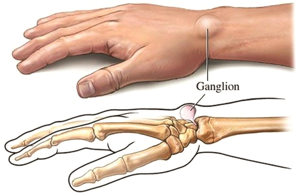 image - Wrist Ganglion Cysts, What You Need to Know to Avoid Surgery