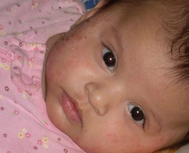featured of How to Treat Baby Eczema